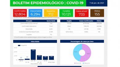 Foto de COVID-19. Com leve redução na quantidade de hospitalizados, SM tem mais 88 casos confirmados